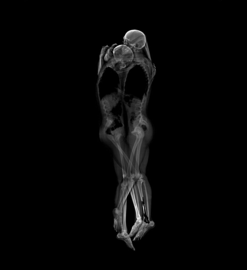 Couples-Portray-Intimacy-human-embracing-x-ray-pictures (1)