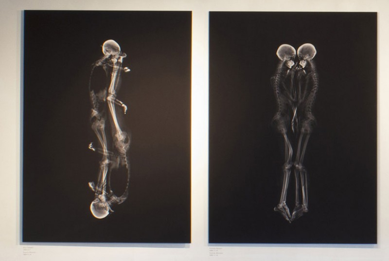 Couples-Portray-Intimacy-human-embracing-x-ray-pictures (2)