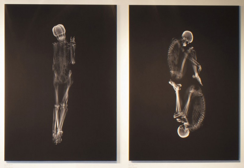 Couples-Portray-Intimacy-human-embracing-x-ray-pictures (3)