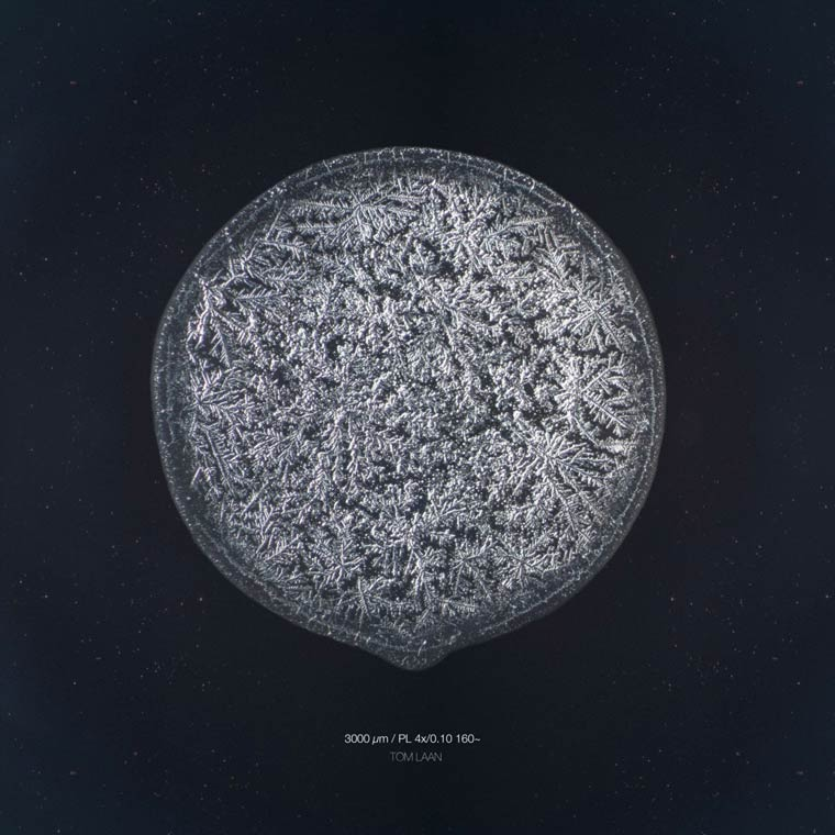 microscope-Tears-images (19)