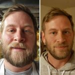 Before-and-after photographs show what happens to these heavy drinkers when they quit drinking
