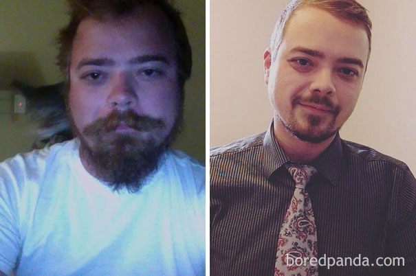 before-after-stop-drinking-alcoholism-compare-photos-7