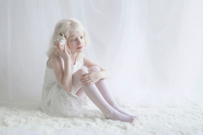 unique-beauty-albino-people-photos-10