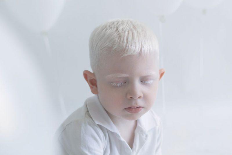 unique-beauty-albino-people-photos-3