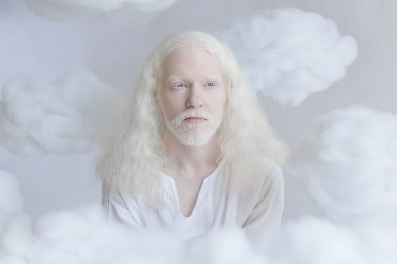 unique-beauty-albino-people-photos-4