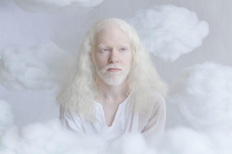 unique-beauty-albino-people-photos-4