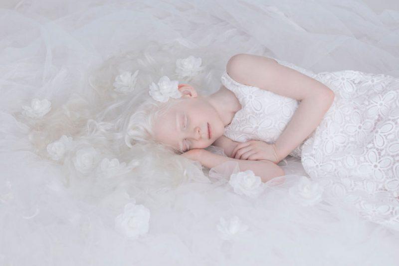 unique-beauty-albino-people-photos-5