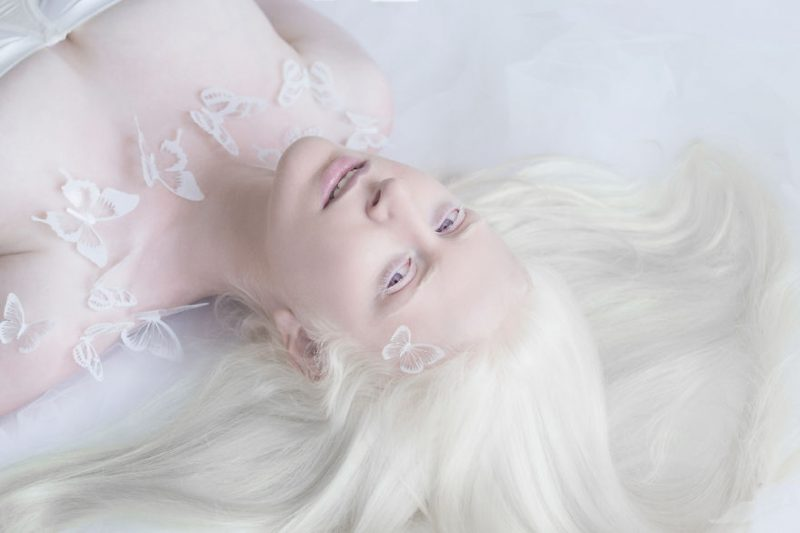 unique-beauty-albino-people-photos-8