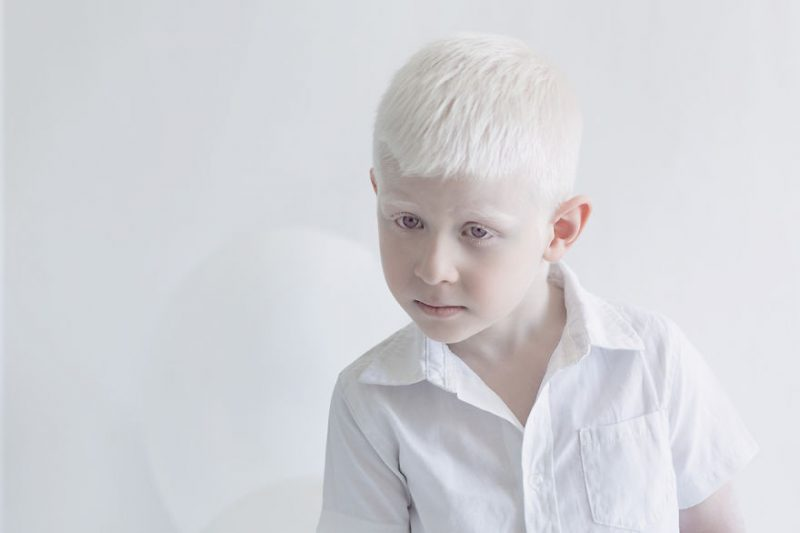 unique-beauty-albino-people-photos-9