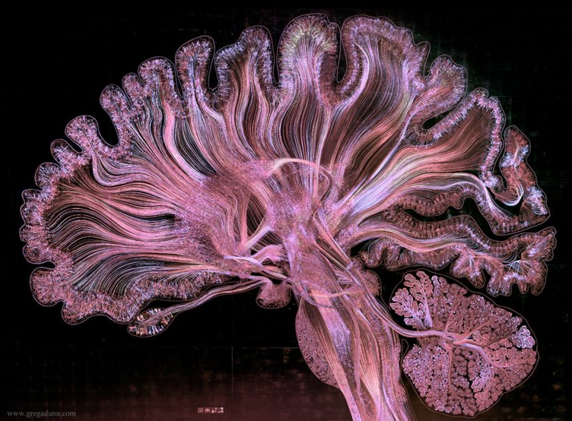 Cross section of the human brain vuing influenced by scientific advancements that allows us to perceive the universe beyond human senses dr greg dunn explains his work ccuart Images